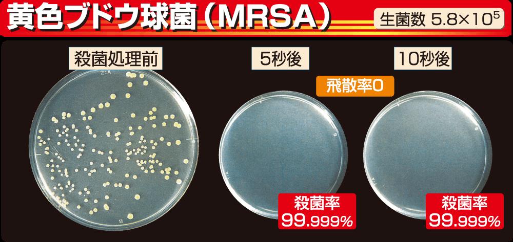 黄色ブドウ球菌(MRSA)